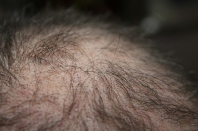 5 Proven Ways to Reverse Hair Loss